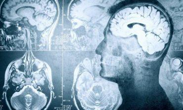 Çfarë ndodh në trurin tuaj në momentin e fundit të jetës