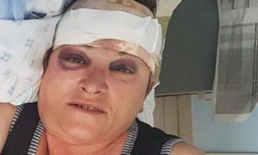 """""""Nuk e di a do ta fal""""/ DETAJE të reja nga plagosja në Gjirokastër 56-vjeçarja: Më shpëtuan kalimtarët..."""