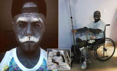 Burri që ka 90 përqind të trupit me tatuazhe heq organin gjenital
