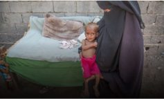 KRIZA NË JEMEN/ 85,000 fëmijë humbin jetën nga kequshqyerja