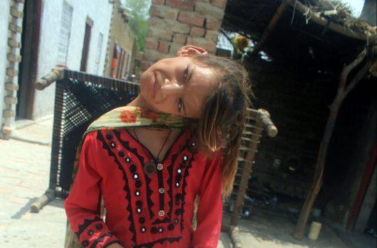 HISTORIA E RRALLË/ Vajza me kokën e përkulur 90 gradë në pritje të…