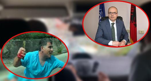 """""""E KA MIHALIN DJALË TEZEJE""""/ Reagon zv.ministri: S'kam teze… nuk ka lidhje fisnore as me pronarin as me turistët"""