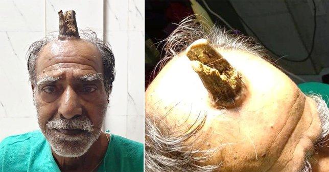 """PAMJET E RENDA/ 74-vjeçari operon """"bririn"""" që i ishte rritur në kokë"""