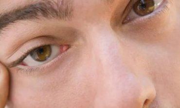 MËSOJENI! Përse dridhet syri? Ky është shpjegimi shkencor