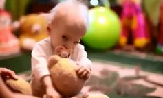 E RRALLË/ Vajza 8 vjeçe vdes nga plakja e parakohshme (VIDEO)
