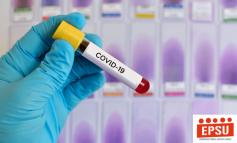 COVID-19/ Vaksina mund të jetë gati në janar, sipas ekspertëve