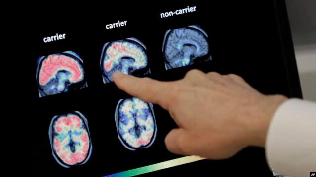 STUDIMI/ Ka prekur rreth 50 milionë njerëz në botë, Alcajmeri mund të zbulohet përmes një analize të gjakut