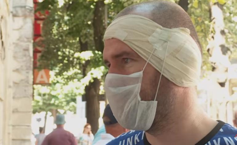 """""""S'KAM MUNDUR AS TË LEXOJ""""/ I riu shqiptar denoncon dhunën: Polici serb më rrahu derisa më ra të fikët"""