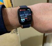 ZBULIMI I SUBSTANCAVE PËRMES LËKUR/ Apple Watches do të masë glukozën dhe alkoolin në gjak
