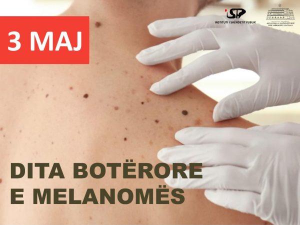 DITA BOTËRORE E MELANOMËS/ ISHP jep këshillat jetike: Si të zbuloni shpejt dhe të parandaloni kancerin e lëkurës