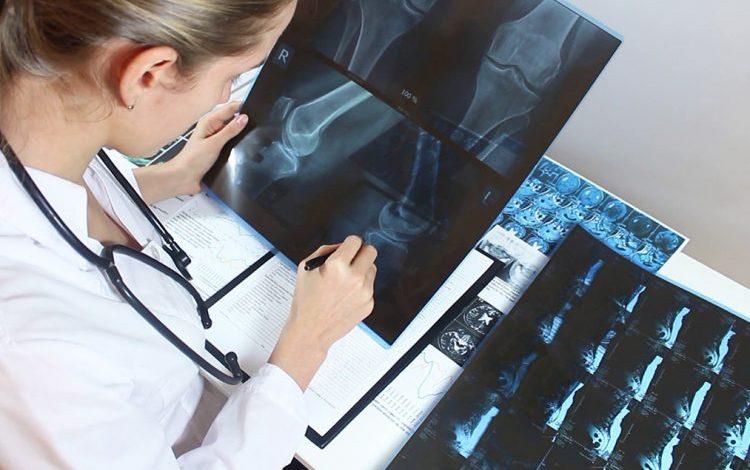 VËMËNDJE! Njihuni me 3 shenjat paralajmëruese të Osteoporozës që duhet t'i dini patjetër