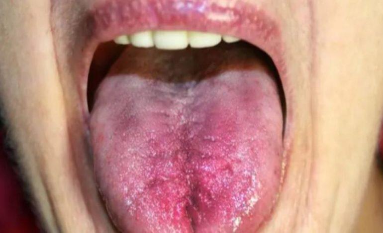KANCERI I GJUHËS/ Mos injoroni asnjë shenjë si ulçera ose dhimbje në gojë
